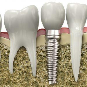 Implantátum azonnal terhelhető